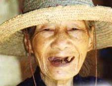 senza denti