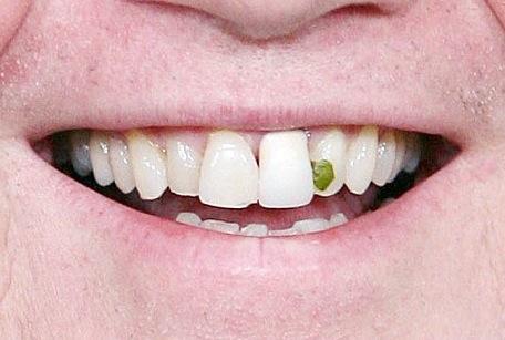 insalata nei denti