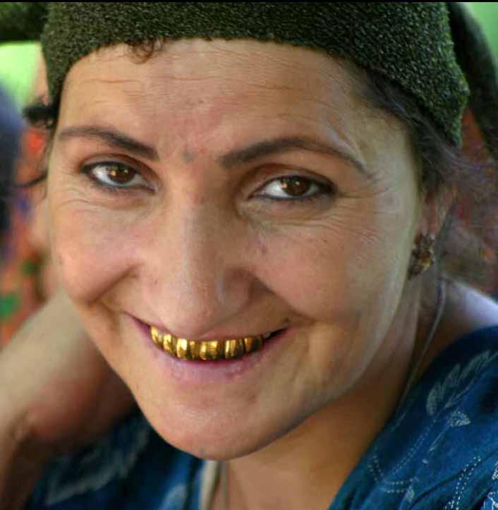dente d'oro Madonna