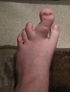 piede strano